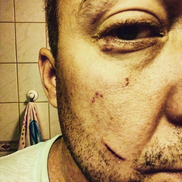 Jukka-Pekan naama oli rujon näköinen pahoinpitelyn jäljiltä.