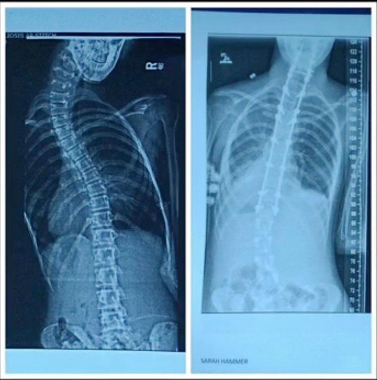 Sarahin röntgenkuvat näyttävät, miten AFM muuttaa hänen vartaloaan. Sairaus liittyy selkäytimeen.