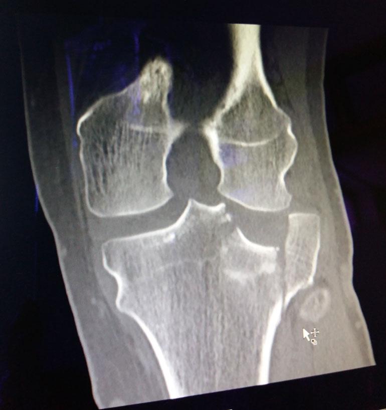 Röntgenkuva paljastaa polven mittavat vauriot.