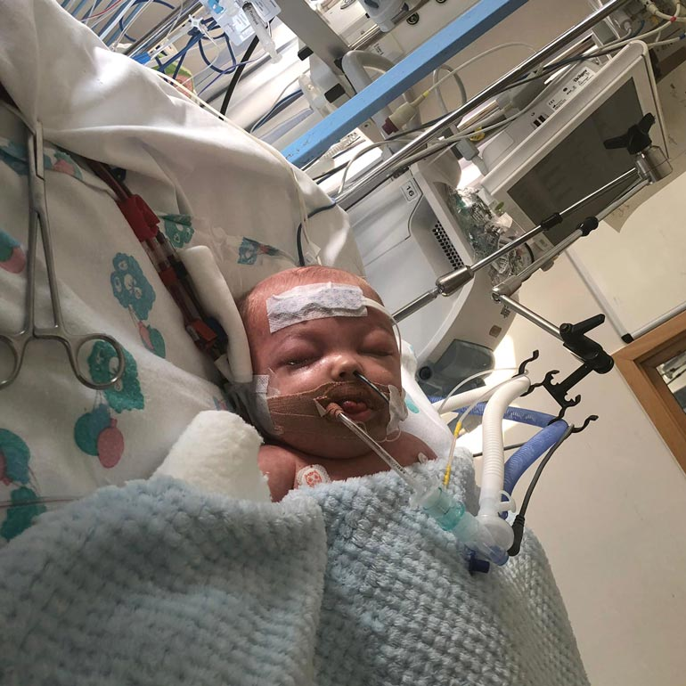 Oliveria pidettiin viikkoja koomassa sen jälkeen, kun hänet oli amputoitu.