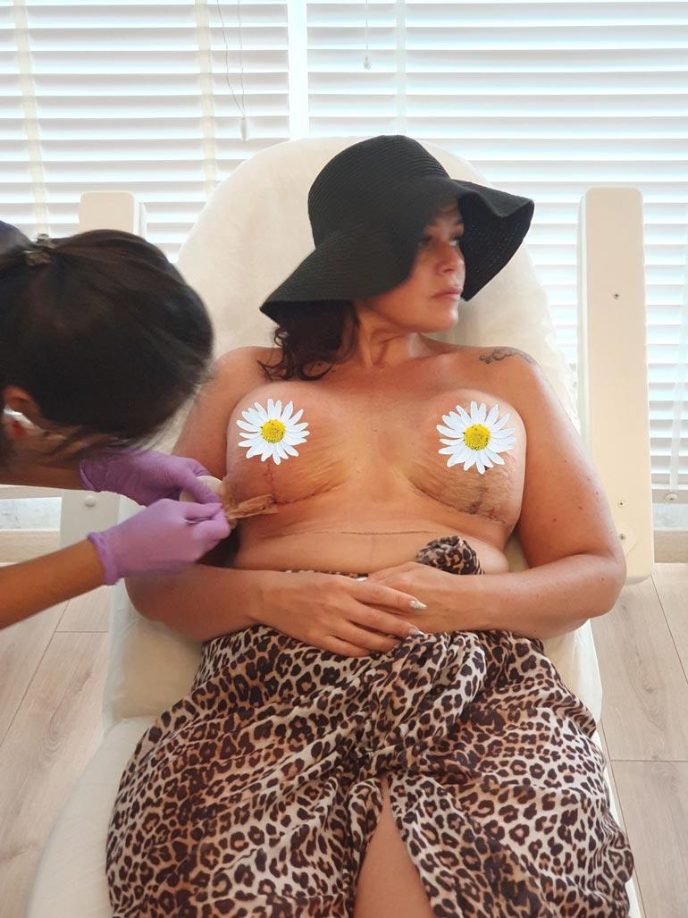 Suvi on tyytyväinen nostoleikkaukseen, jossa hänen silikoni-implanttinsa vaihdettiin. – Samalla nännini siirtyivät senttikaupalla ylöspäin. Vielä kun saisin ne nöpöttämään!