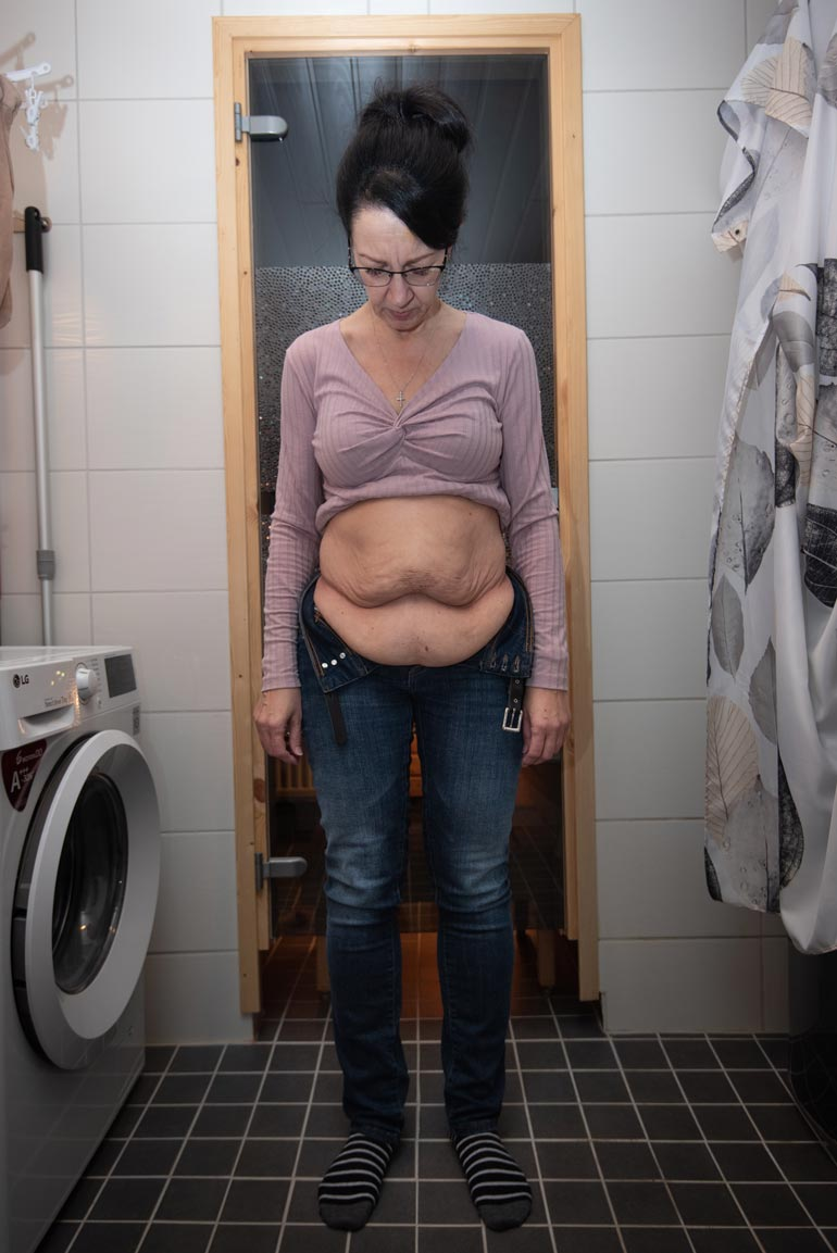 Ennen kiristysoperaatiota vatsan päällä oli paljon ylimääräistä nahkaa.