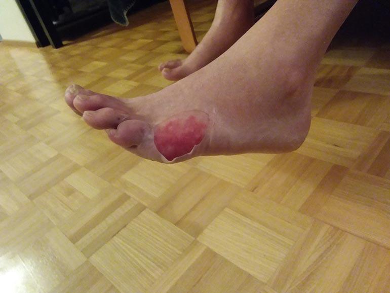 Tulikuuma vesi teki pahaa jälkeä Jarin jalansyrjään.  – Diabeteksen takia jalassani ei ole tuntoa, joten en huomannut polttavaa vettä.