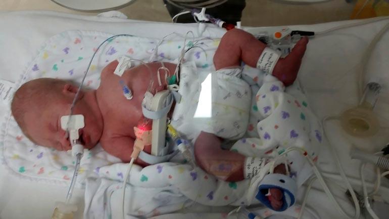 Gemma ja Chris näkivät paljon vaivaa saadakseen pojalleen toimivan käden. Jacob syntyi ilman vasenta kättä.