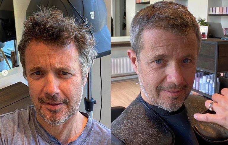 Prinssi Frederik ennen ja jälkeen hiusoperaation.