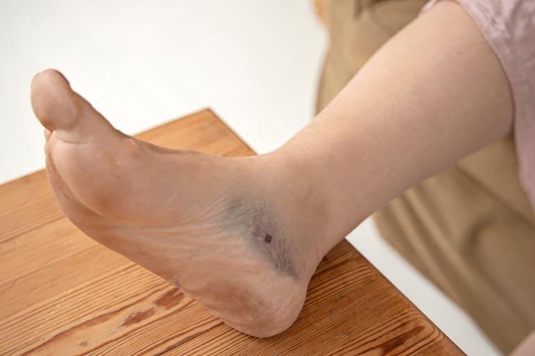 Sunnevan jalka sai tällin laskuvarjohypyn alastulossa.