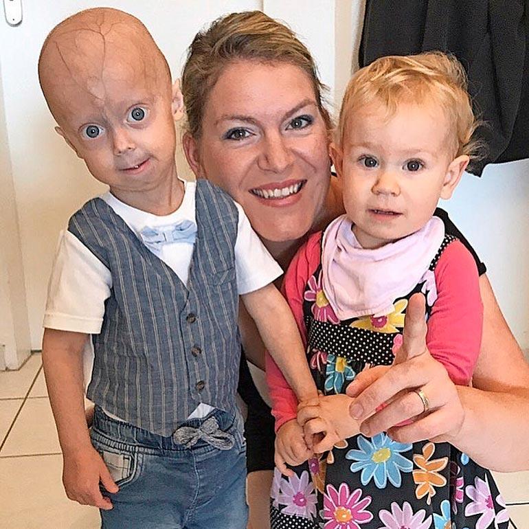 Luken pikkusisko ei sairasta progeriaa.