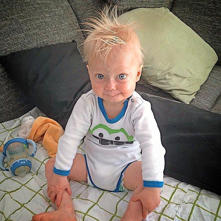 Lukella oli hiukset vielä kaksivuotiaana, mutta hän menetti ne, koska hänen ruumiinsa vanhenee ennätysnopeudella.