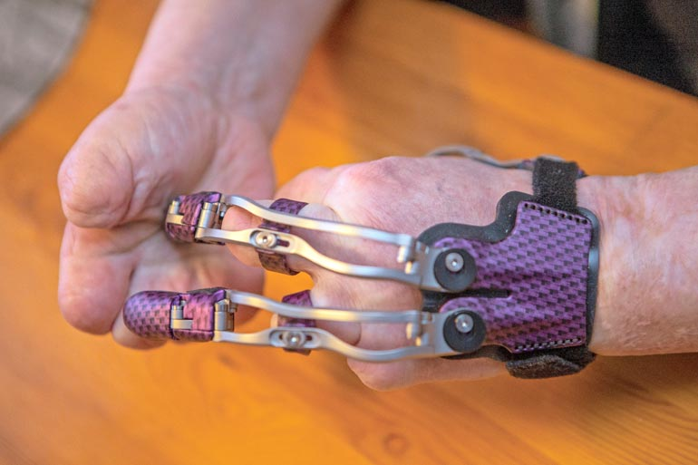 Liisa ei ole innostunut mekaanisesta kädestään. – Olen näppärämpi omilla tyngilläni kuin tällä.