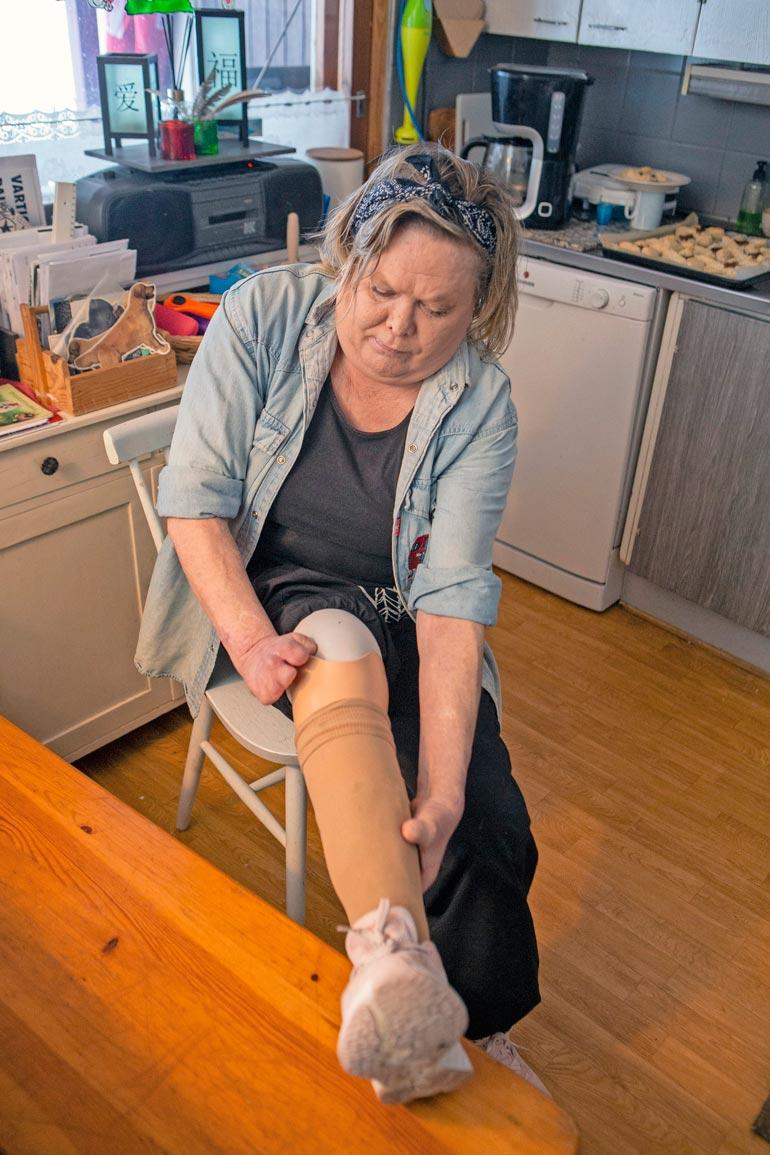 Nykyiset proteesit ovat pari senttiä edellisiä pidemmät. – Näitä on pakko lyhentää, jotta kävelyni olisi luontevaa.
