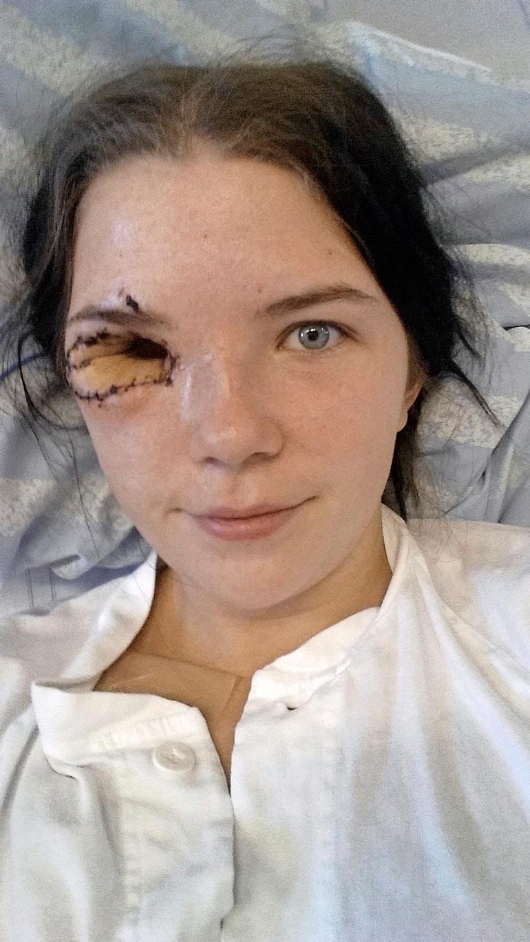 Linnean  oikea silmä  poistettiin  vuosi syöpädiagnoosin  jälkeen.