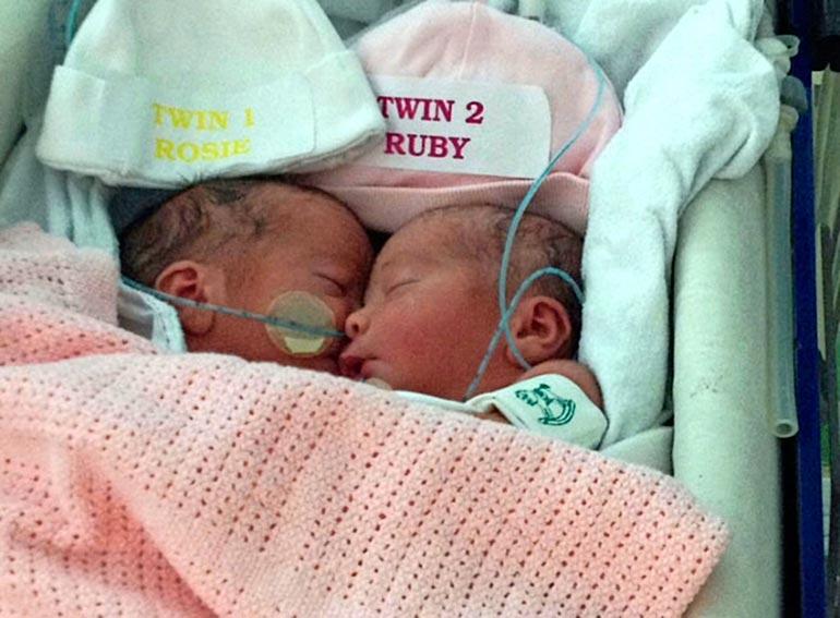 Vastasyntyneiden Rosien ja Rubyn erottamisleikkaukseen osallistui 15 lääkäriä.