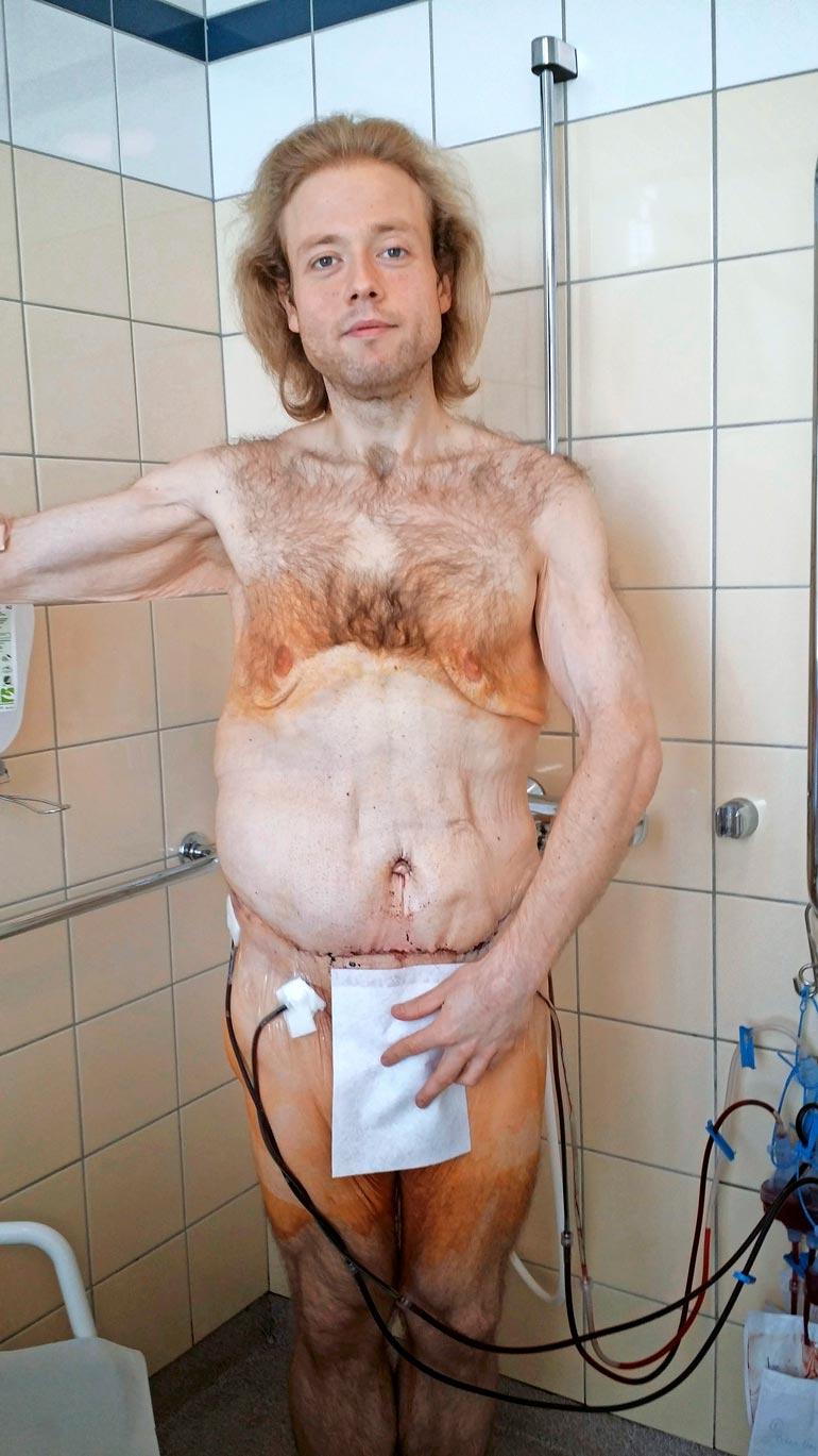 Tony on käynyt läpi kaikkiaan seitsemän leikkausta, jossa hänen löystynyttä ihoaan on kiristetty.
