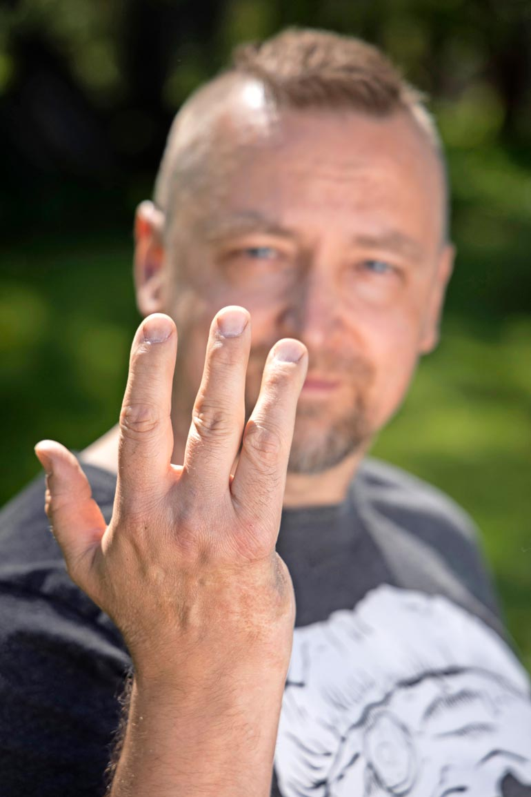 Oikean käden pikkusormettomuus on pikkujuttu, peukalon säilyminen on paljon tärkeämpi asia.