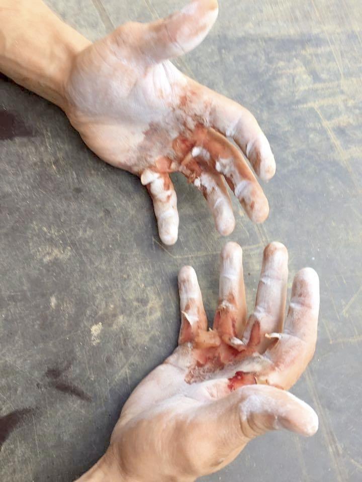 Joonas Mäkipellon kädet