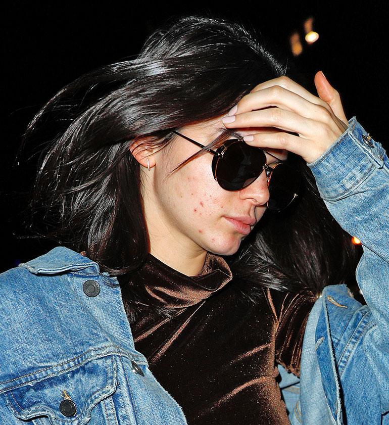 Kendall Jennerillä on akne