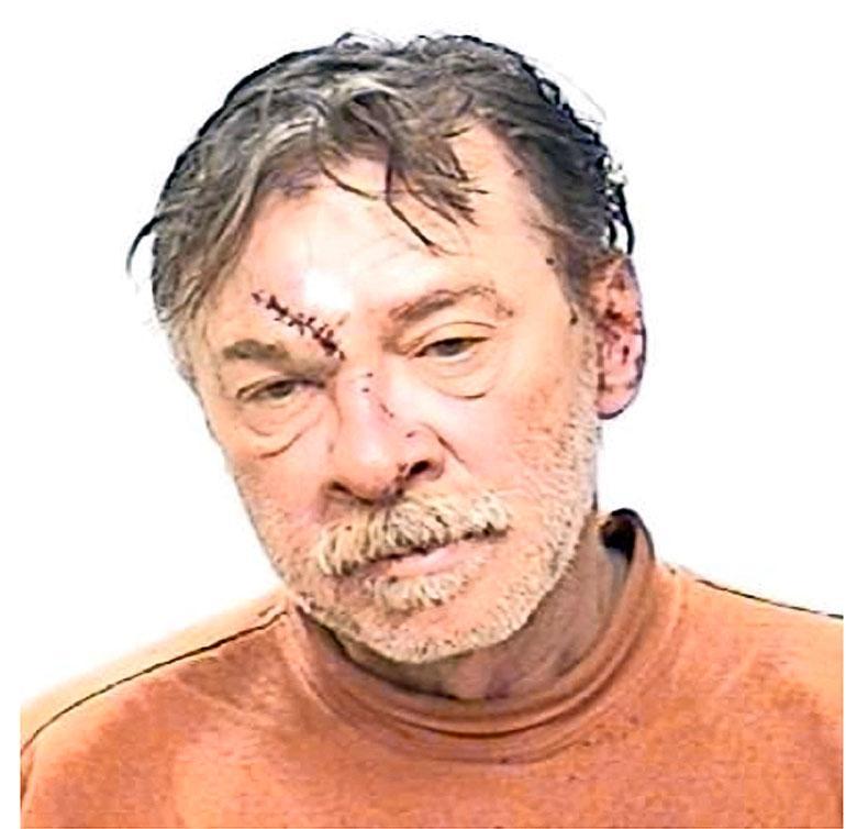 Anthony on ollut usein pidätettynä juoppokärhämien seurauksena. 