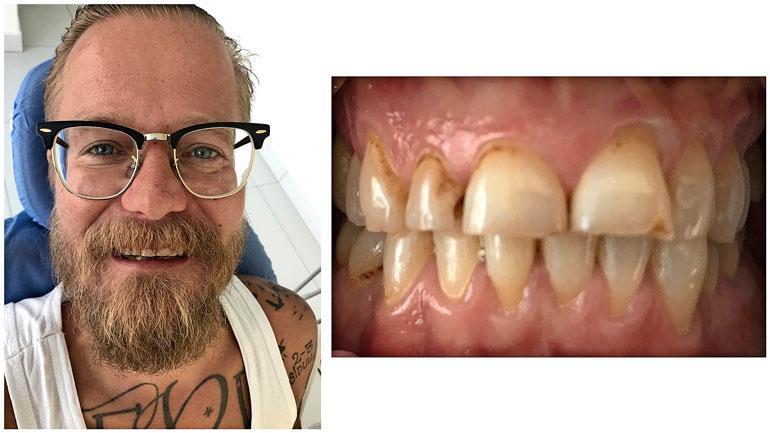 Wallun hampaat ennen operaatiota.