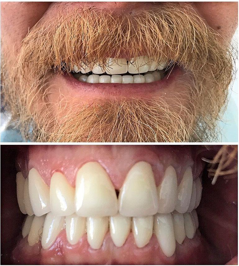 Wallun hampaat operaation jälkeen.