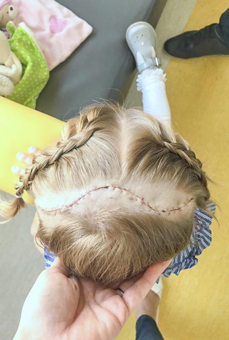 Pään halkaisee mutkitteleva arpi, jonka saa piiloon pitkillä hiuksilla.