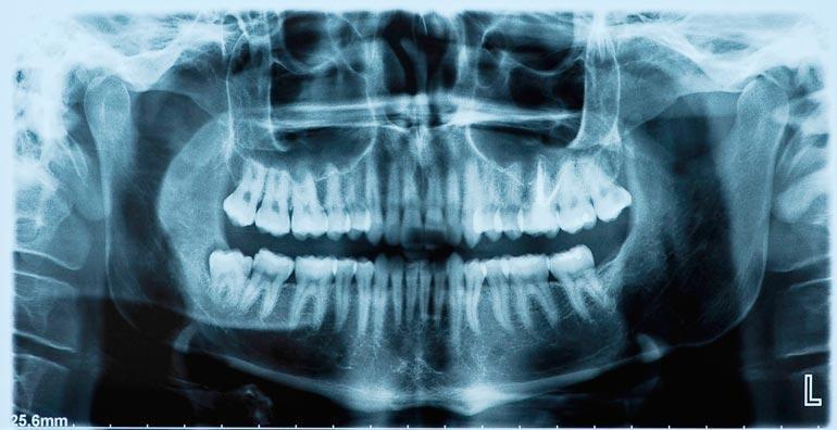 Hampaiden kiinnityskudossairauden vakavuus on ymmärretty vasta tällä vuosituhannella.