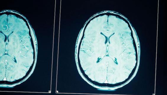 Aivokuva voi paljastaa mielenterveysongelmat.