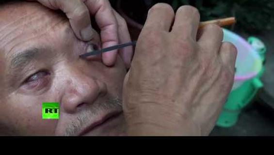 Uskaltaisitko putsata silmäsi partaveitsellä - käytetään sokeutumisen estämiseen!