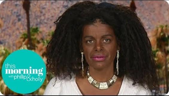 """Martina, 29, syntyi valkoihoisena: nyt hänellä on tumma hipiä ja """"Euroopan suurimmat"""" S-kupin rinnat - näin uskomattomalta hän näyttää nyt!"""