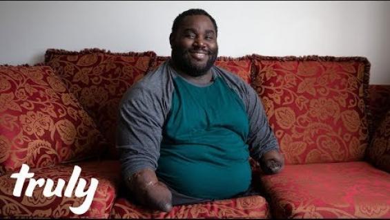 """Seksi sujuu ilman raajojakin! Kädetön ja jalaton Joe, 34, sai neljännen lapsensa syrjähypystä - vaimo antoi anteeksi: """"Monet ihmettelevät, kuinka harrastan seksiä"""" – video!"""