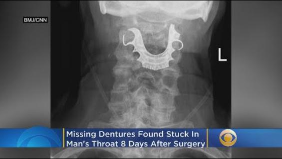 Kadonneet tekohampaat löytyivät leikkauspotilaan kurkusta!