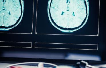 Naisen aivoista löytyi kasvain.