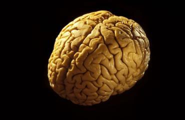Aivot laitettiin väärään ruumiseen.