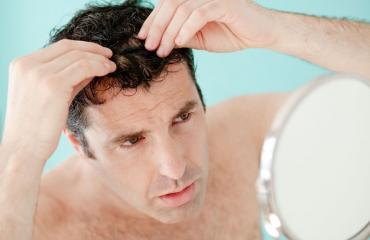 Moni asia aiheuttaa hiustenlähtöä.