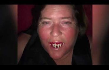 """Halloween-asusta tuli tosielämän painajainen - karmivat hampaat jäivät suuhun! """"Hän tonki ja kiskoi ja minä kiljuinkuin vauva"""" - katso video!"""