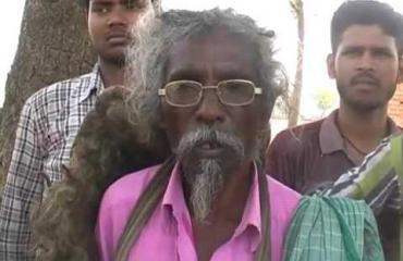 Rastat ovat jumalan siunaus - mies ei ole pessyt hiuksiaan vuosikymmeniin!